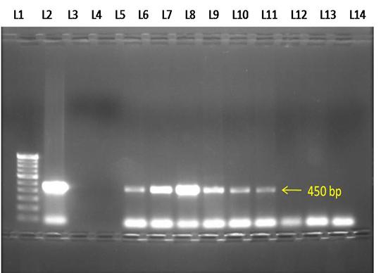 Nexus academic publishers nap figure 3 electrophoresis gel 10 agarose showing lanes l1 100 bp dna marker l2 positive control l3 negative control l4 no template control pronofoot35fo Choice Image